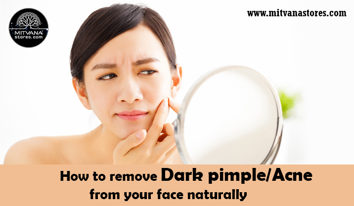 Acne pimple gel